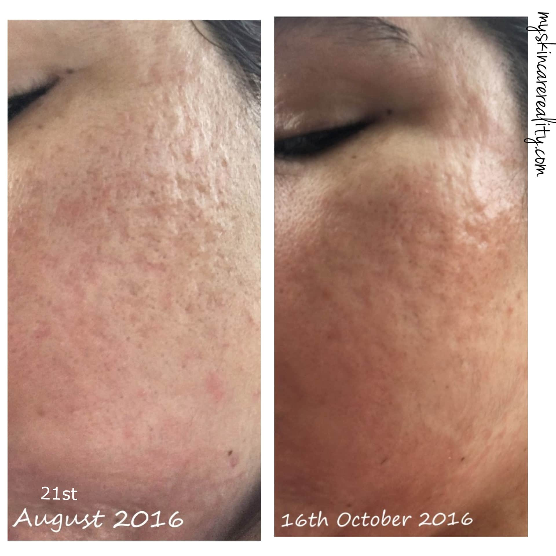 Indented Acne Scars |Skin Progress Pictures Update 1